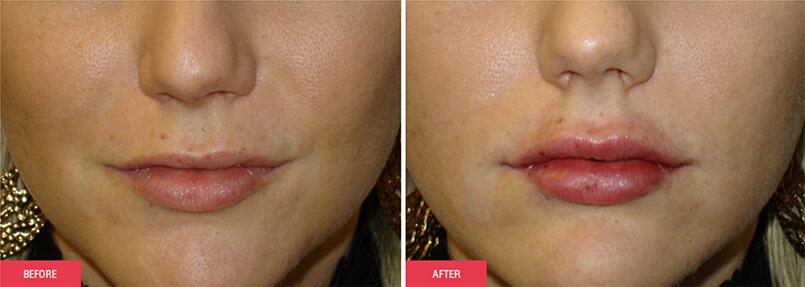 Austin Lip Injections