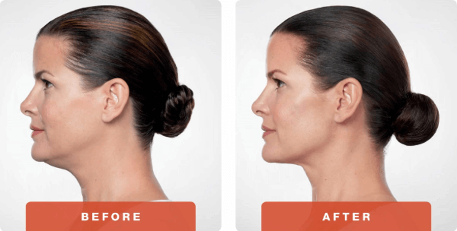 Austin Kybella Injectables Double Chin Treatment By Dr Bittar